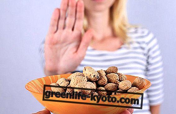 Toiduallergiad: mis on kõige levinumad allergeenid ja milliseid sümptomeid nad põhjustavad