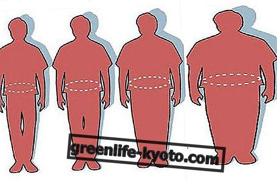 Exceso de grasa en el cuerpo.