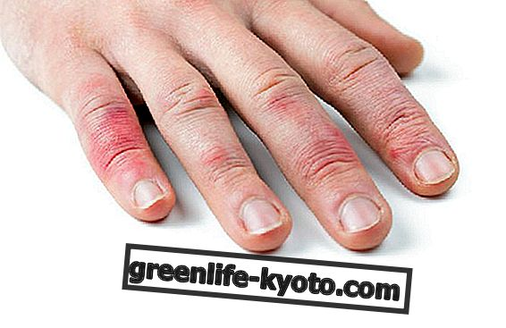 Psoriasis de las manos: síntomas y remedios naturales.