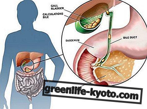 胆石症:症状、原因、すべての治療法