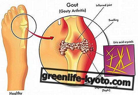 Goutte, remèdes naturels homéopathiques