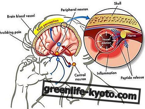 Κεφαλαλγία: συμπτώματα, αιτίες, όλα τα διορθωτικά μέτρα