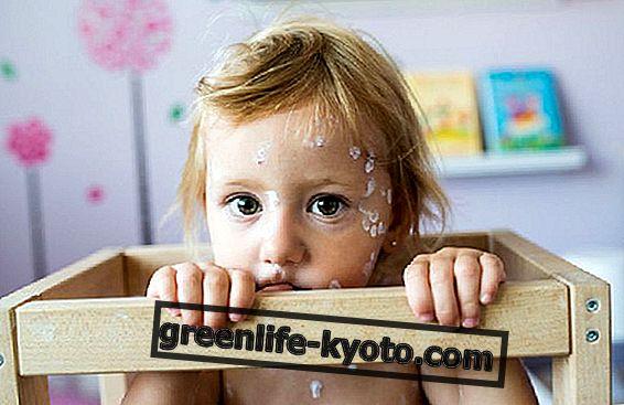 Atopiskais dermatīts bērniem: simptomi un līdzekļi