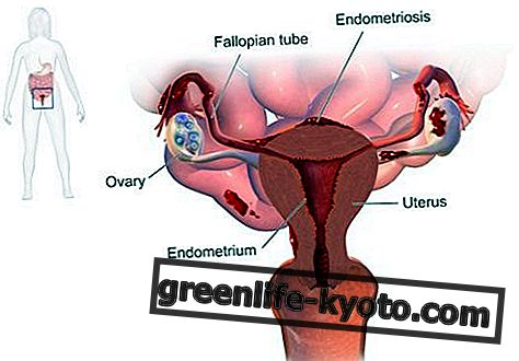 Endometriosis: symptoms, causes, all remedies