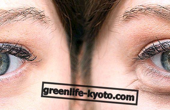 Cómo prevenir las arrugas alrededor de los ojos.