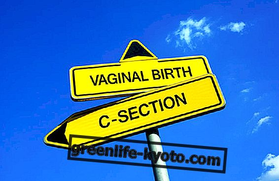 Dar a luz naturalmente después de una cesárea.