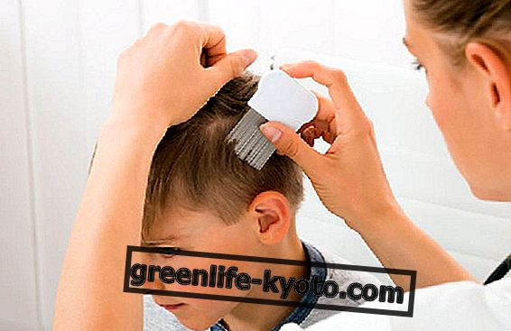 How to recognize lice
