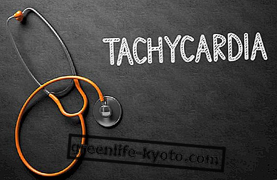 Ventricular tachycardia: symptoms, causes and remedies