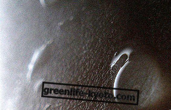 No más piel seca con ácido hialurónico.
