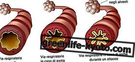 अस्थमा, होम्योपैथिक प्राकृतिक उपचार