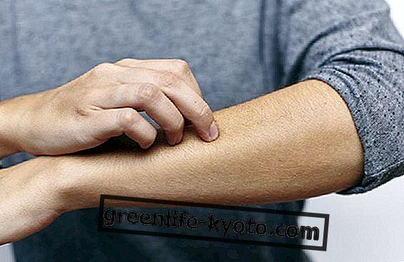 Bệnh vẩy nến Guttate, làm thế nào để chữa nó?