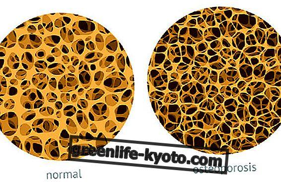 """Osteoporose: Die Kampagne """"Stoppt Frakturen"""""""