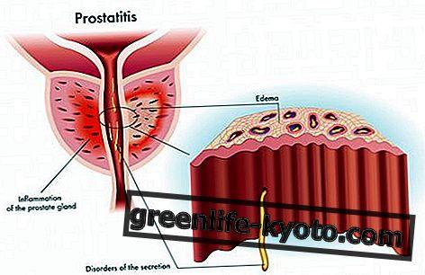 Prostatitis, remedios homeopáticos naturales