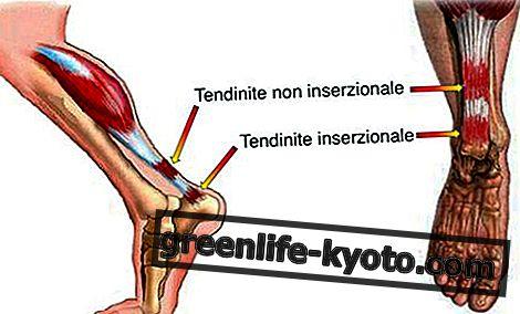 Tendonitis: síntomas, causas, todos los remedios.