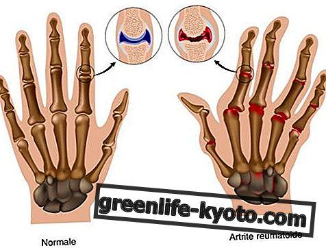 Arthritis, homöopathische Naturheilmittel