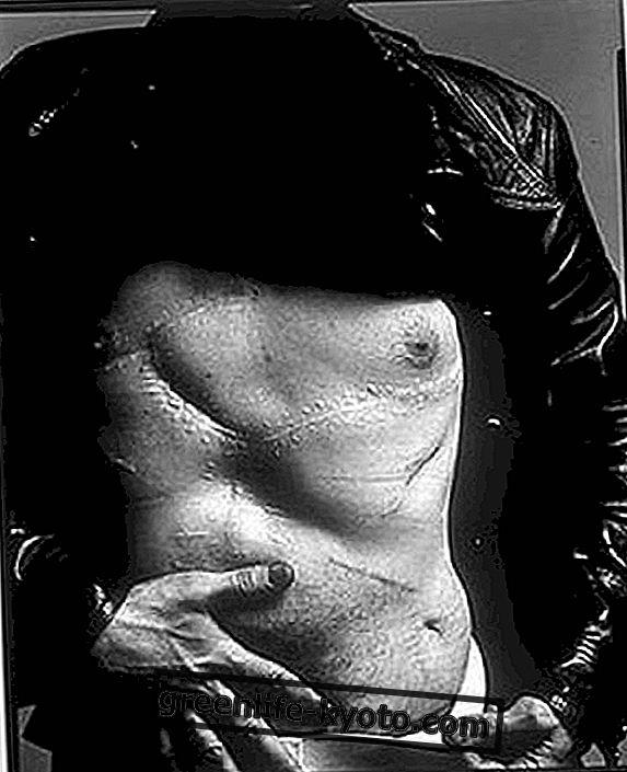 Jizvy ovlivňují držení těla