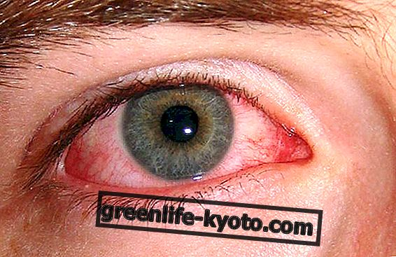 How to resolve conjunctivitis with natural products