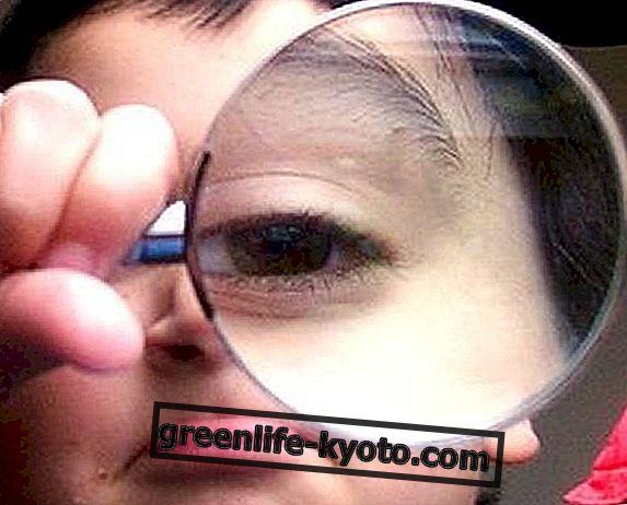 Sveikatos akys: iridologinės konstitucijos