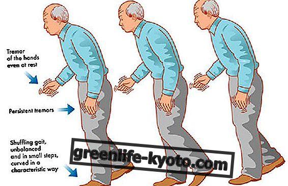 Acupuntura en el tratamiento de la enfermedad de Parkinson.