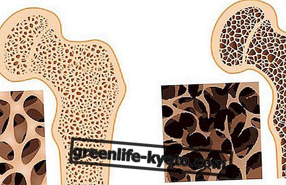 Κίνηση και ο ήλιος στην πρόληψη της οστεοπόρωσης