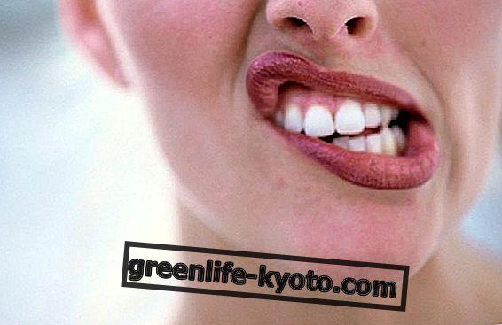 口潰瘍、それらを予防する方法