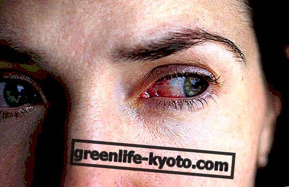 Ojos rojos, remedios naturales.